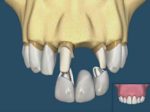 implant mı? yoksa sabit protez köprü mü?