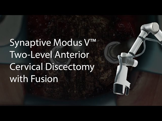 Synaptive Modus V™ - Two-Level Anterior Cervical Discectomy with Fusion (C5 6 and C5 7 ACDF)