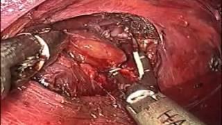 ENDOSCOPIC THYROIDECTOMY - DR. AJAIYAKUMAR SK