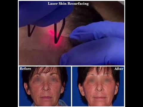 Laser Skin Resurfacing Procedure & Transformation