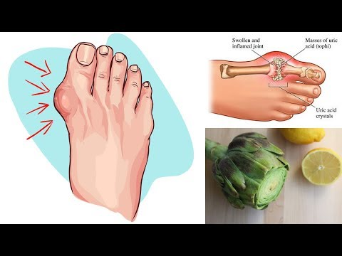 Eliminate Gout and High Uric Acid Levels With Artichoke and Lemon Water