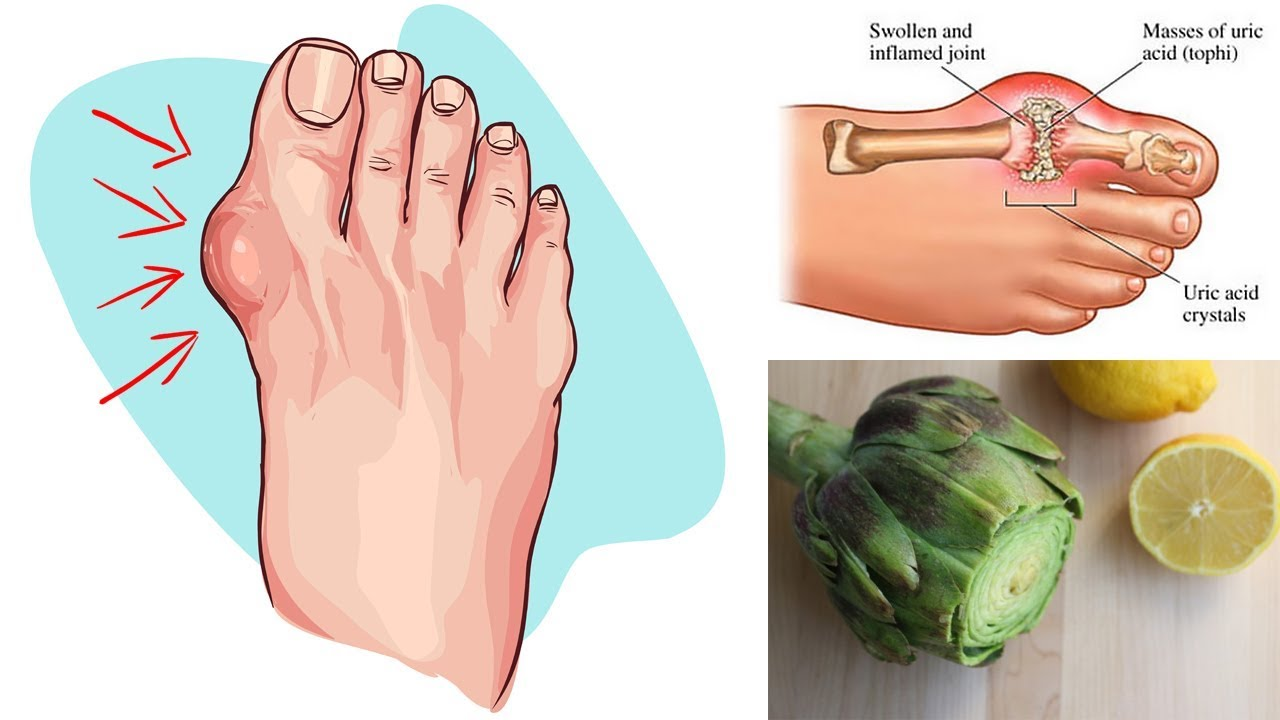 Say Goodbye To Gout And High Uric Acid Levels With This