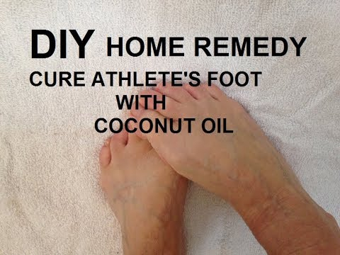 diy-Cure Athlete's foot with coconut oil