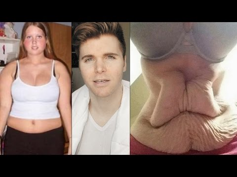Diet Pills Are NOT Worth It (Weight Loss Scams)