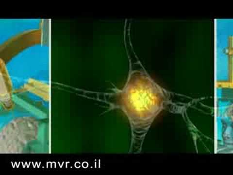 MVR Multimedia- 3D Medical Animation