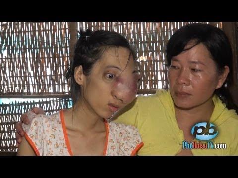 Nhà nghèo không tiền chữa bệnh, cô sinh viên bị khối u phá hủy gương mặt