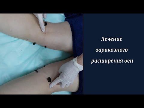 Лечение варикозного расширения вен, осложнения | гирудотерапия | медицинские | гирудотерап | поставить | пиявками | лечебные | лечение | варикоз | пиявки | купить