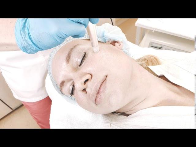 """Как проходит безинъекционная мезотерапия аппаратом NanoMed 3d в Салоне красоты """"Эстет""""."""
