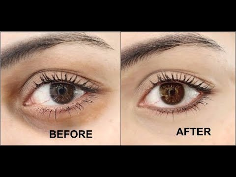 How To Remove Eye Dark Circles