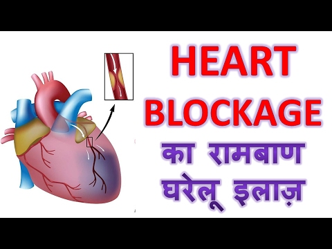 Heart Blockage का रामबाण घरेलू इलाज़