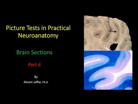 Picture Test in Neuroanatomy Brain Sections 6