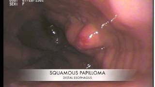 ESOPHAGEAL SQUAMOUS PAPILLOMA