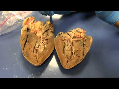Dissection Video   Heart