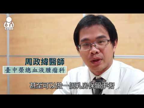 20180313台灣乳癌年輕化 每年2000人因乳癌死亡