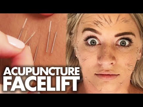 We Got 100 Acupuncture Needles In Our FACE!?! (Beauty Trippin)