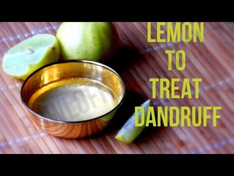 Lemon and coconut oil for dandruff cure