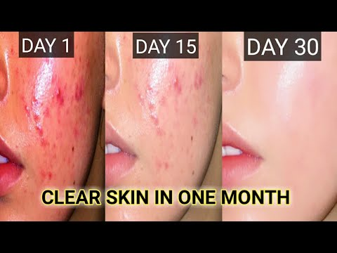 diy-toner-for-oily-and-acne-prone-skin-||-natural-toner-for-summers