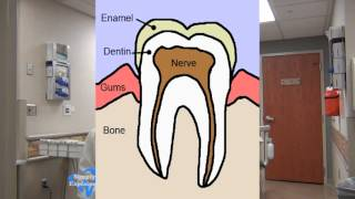 What Causes Tooth Cavities? Simply Explained