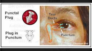 Dry Eye 2: Diagnosis and Treatment