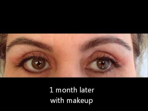 Nadia 53 Eyelid rejuvenation |Lower Blepharoplasty Recovery Photos