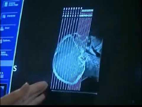 CT scan - Imaging in medicine (3/13)