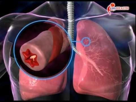MyHEALTH : Asma