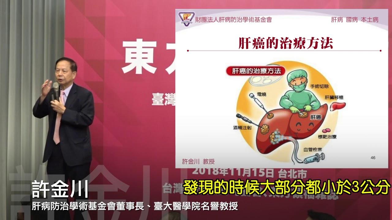 肝硬化併發癥之一 食道靜脈瘤破裂大出血 - YouTube