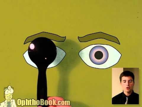 Ophthalmology Lecture - Tropias & Phorias (part 2/2)