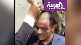 تفاعلكم | الحوثي يطبق عقوبات داعشية على أطفال وشباب اليمن