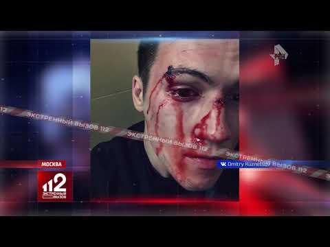 Избили бойца смешанных единоборств | видео и подробности