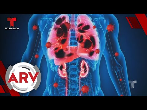 Coronavirus: El virus cuenta con 3 fases y produce daños en todos los órganos | Telemundo