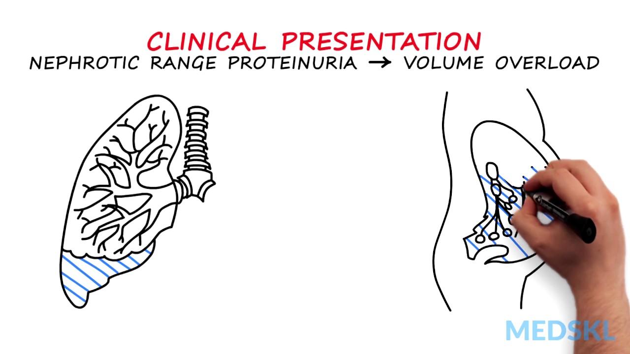 Magas vérnyomás, Magas vérnyomás proteinuria ödéma jellemző