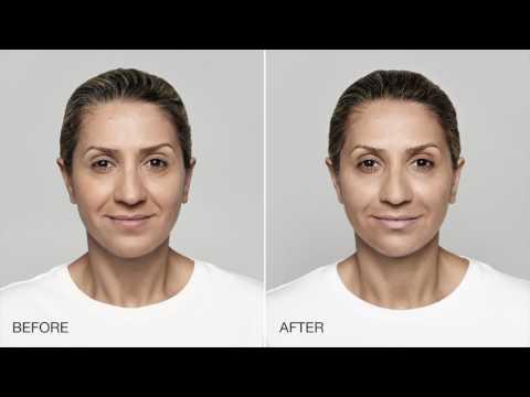 Hagerstown Dermatology Restylane Silk & Lyft - YouTube