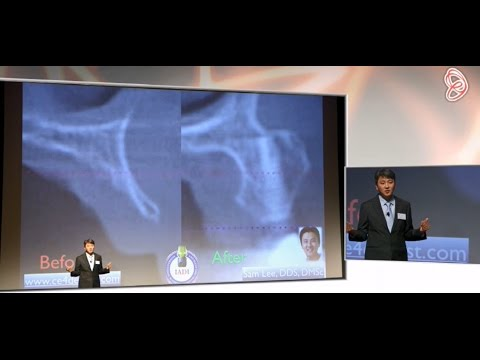New Techniques in Implantology in 2017
