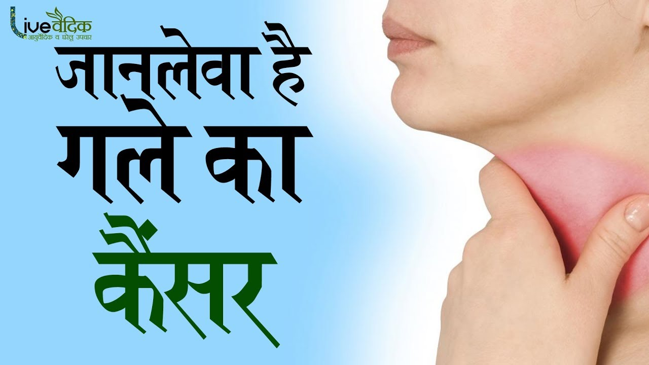 What is throat cancer in hindi