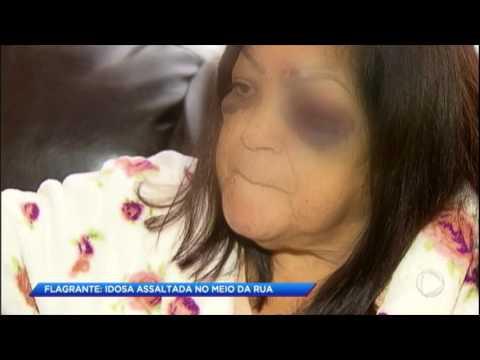 Imagens flagram idosa sendo arrastada em assalto na rua da sua casa