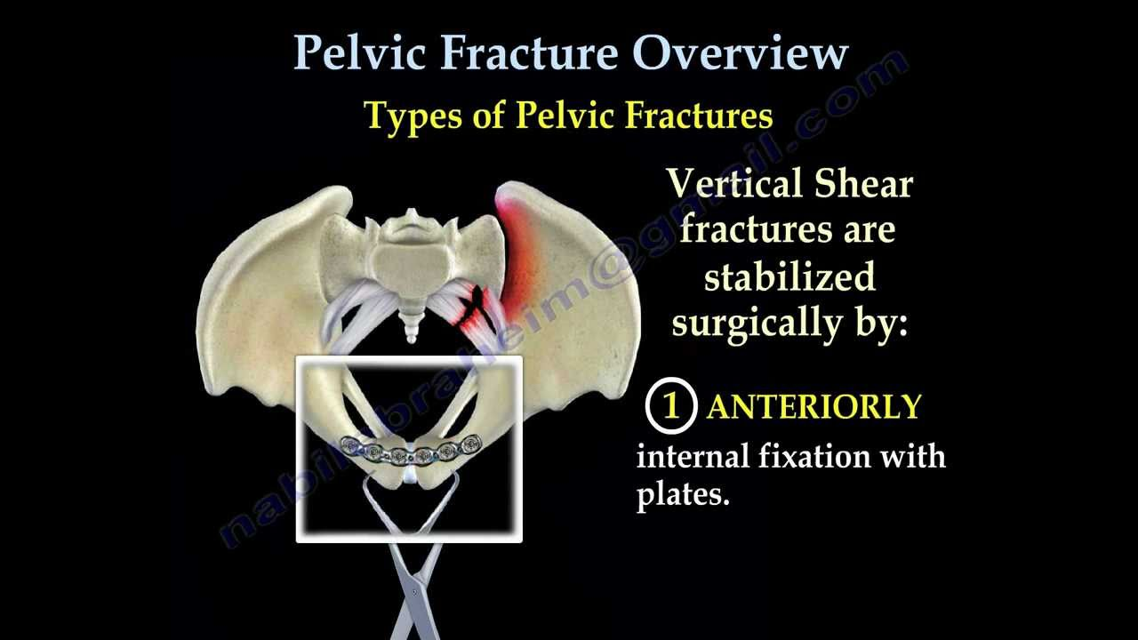 pelvic fracture overview everything you need to know dr nabil