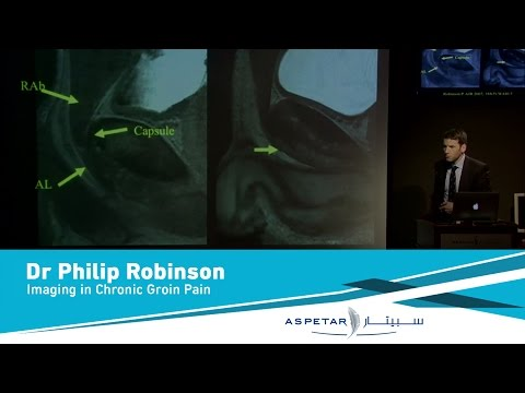 Imaging in Chronic Groin Pain by Dr Philip Robinson