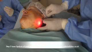 Laser Face and Neck Lift. UK clinic serving Norfolk, Suffolk, Essex, London and East of England. Thumbnail