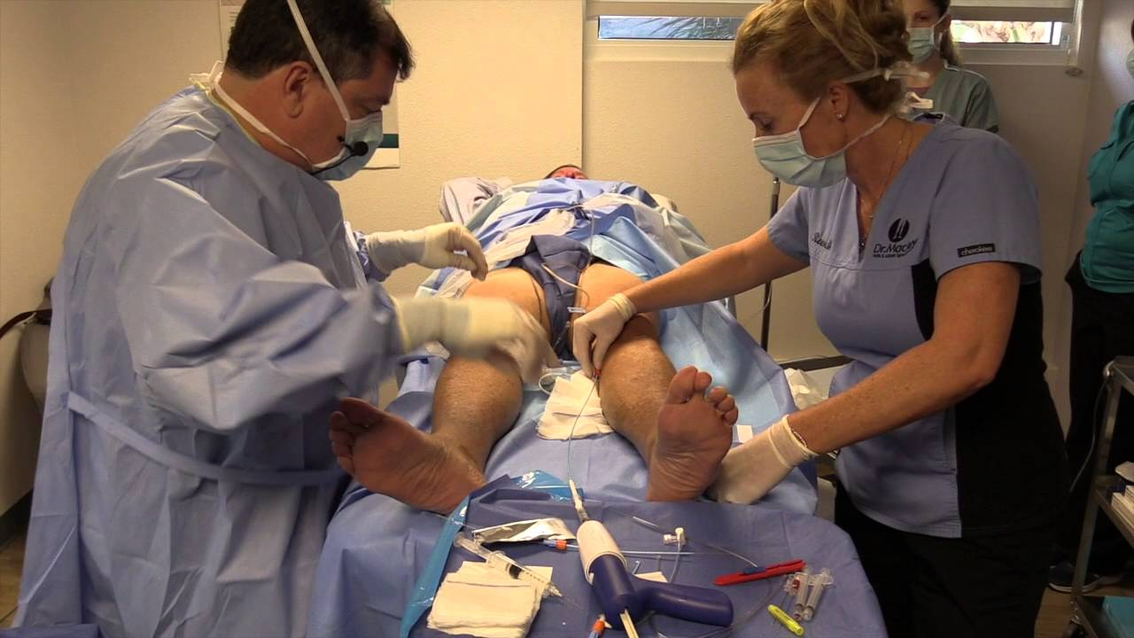 endovascular varicose vein treatment