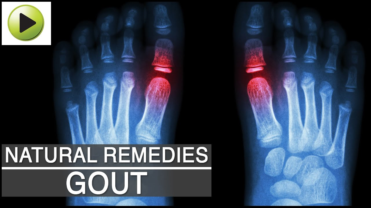 gout ankle heat cold medicine cure gout now review gout remedy essential oils