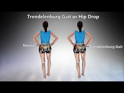 Exercises for Trendelenburg Gait or Hip Drop