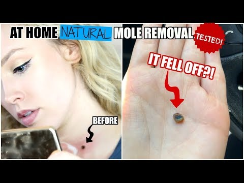 TESTING A NATURAL AT HOME MOLE REMOVAL CREAM!