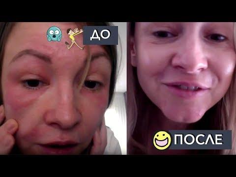 Аллергия на косметику: как БЫСТРО спасти кожу!