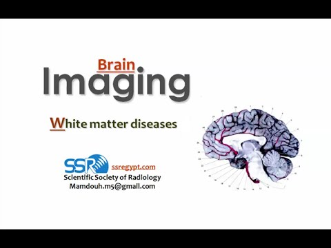 Imaging of White matter diseases I - DRE 10 - Dr Mamdouh Mah