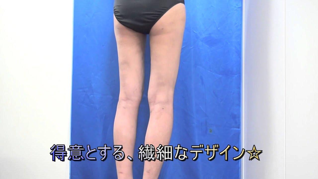 美乳豊胸 美脚くびれ脂肪吸引 二重専門 美容整形 口コミ 湘南 ...