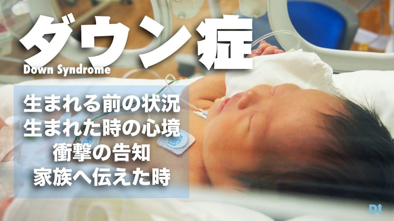 新生児 特徴 ダウン症