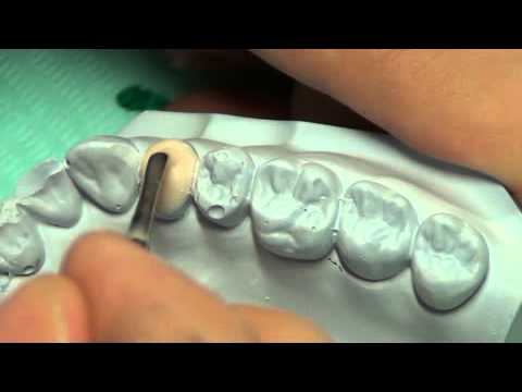 Dental Anatomy Lab (Premolar Tutorial) Part 1