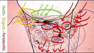 Periodontal Cure Bonner Method microscope caricature drawing