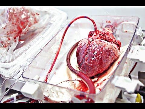 TransMedics Pumping Heart   WIRED